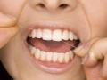 Malattia parodontale o parodontite: misure di prevenzione e consigli di igiene orale