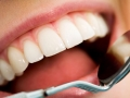 Igiene orale: perchè è importante fare la pulizia dentale regolarmente