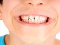 Odontoiatria pediatrica infantile. Perchè il dentista è una figura importante per il bambino