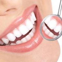 L'igiene orale per preservare la salute della bocca e dei denti