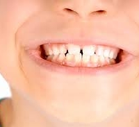 Pedodonzia o Odontoiatria Pediatrica