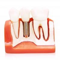 Impianti dentali per sostituire uno o più denti