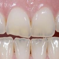 Estetica dentofacciale